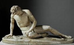 Dying Gaul
